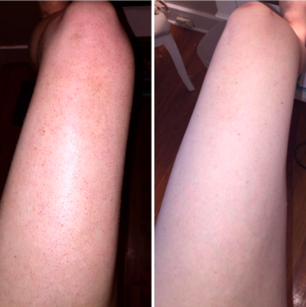 """""""I had a bad case of keratosis pilaris on my legs, but two"""