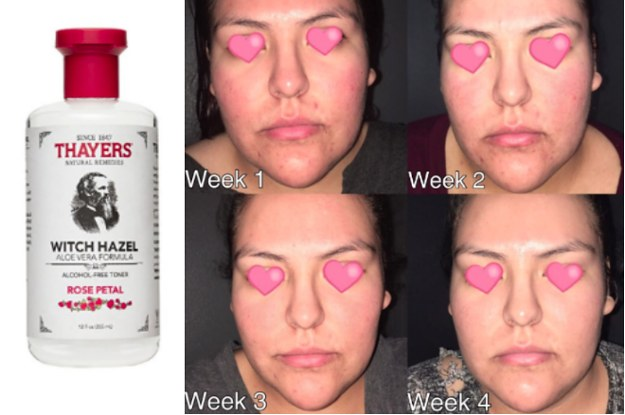 15 Miracle Beauty Products With The Most Satisfying Before-And-After Photos
