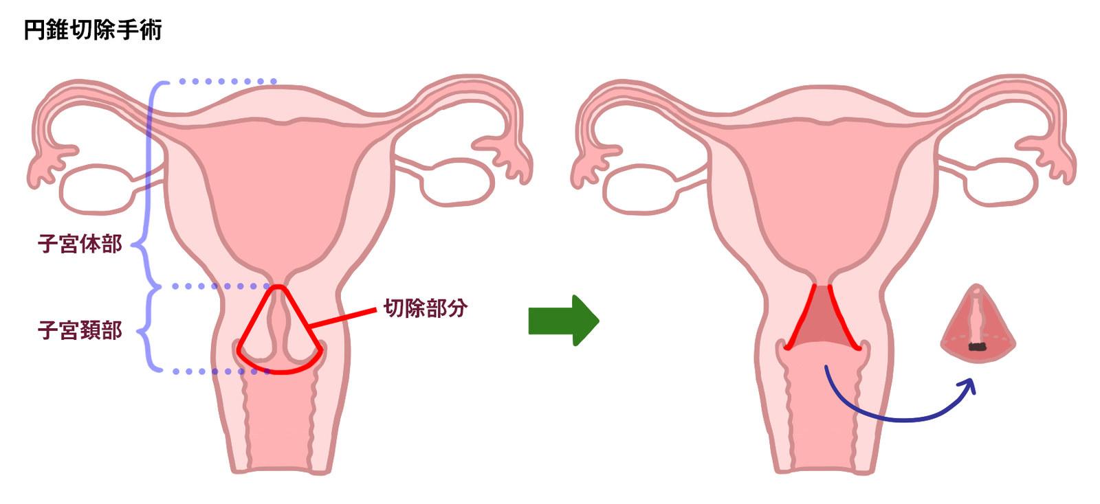 筋腫 手術 リスク 子宮