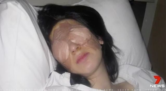 After a sinus and staph infection, a 17-year-old woman began experiencing a weird phenomenon where her eyes would close tight for a few days straight. Around the third day, she'd be able to open and use her eyes again as normal. She's now 30, has had 99% of her eyelid muscles removed, and is legally blind. Her bizarre condition still baffles doctors.