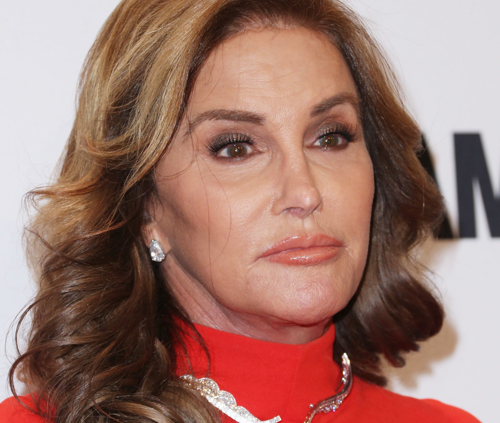 And the paparazzi harassment and scrutiny of the Kardashians isn't limited to pregnancy. Remember when rumours first emerged that Caitlyn Jenner was transitioning, and the paparazzi managed to capture photos of her leaving hospital after having her Adam's apple shaved down?