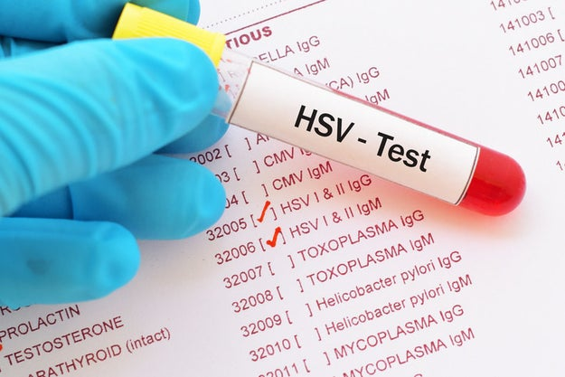 The only way to know if you have HSV-1 or HSV-2 is to get tested.