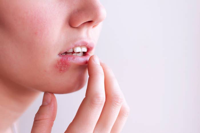 Here's What You Need To Know About Cold Sores And Herpes