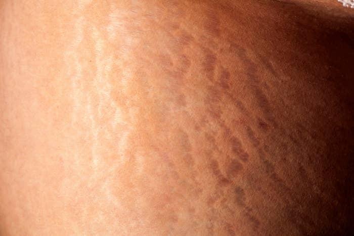 pro ana stretch marks