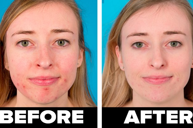 we tried the aztec healing clay mask and it really made a difference