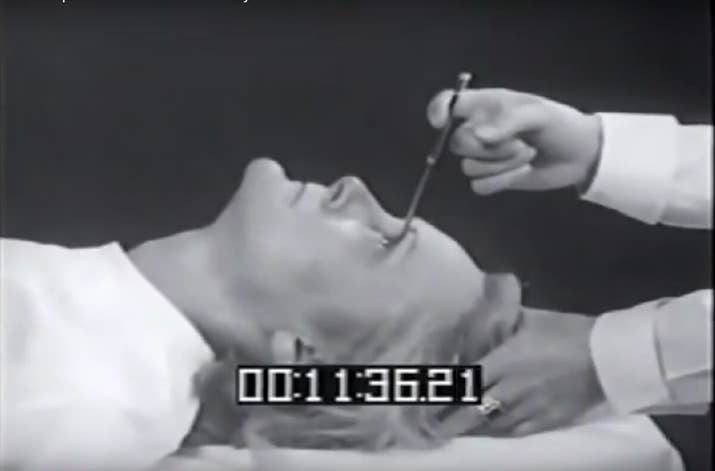 "This gruesome surgery was invented in 1946 by a Dr. Walter Freeman, who thought the best cure for mental ill health was to take an ice pick, jam it into a patient's eye socket, and move it sideways to sever the ""emotional areas"" from the rest of the brain. The brutal procedure would sometimes seem to work, but more often than not it would cause brain bleeding, paralysis, and lasting disability."