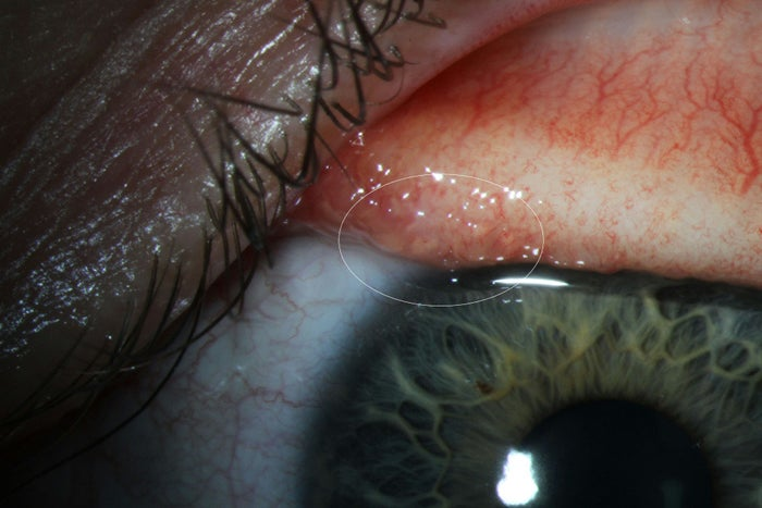 An eyeworm on Abby Beckley's eye, before doctors removed it with a tweezer.