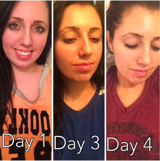 photos marked day 1, 3, and 4 of a reviewer's redness fading and their face looking dewy and more even