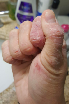 reviewer's hand with deep dry cracks and cuts on fingers