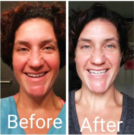 27 Skincare Products With Before And After Photos That Ll Blow