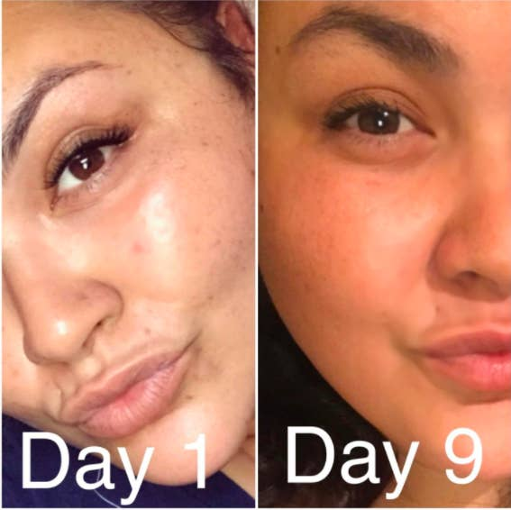 27 Skincare Products With Before And After Photos That'll