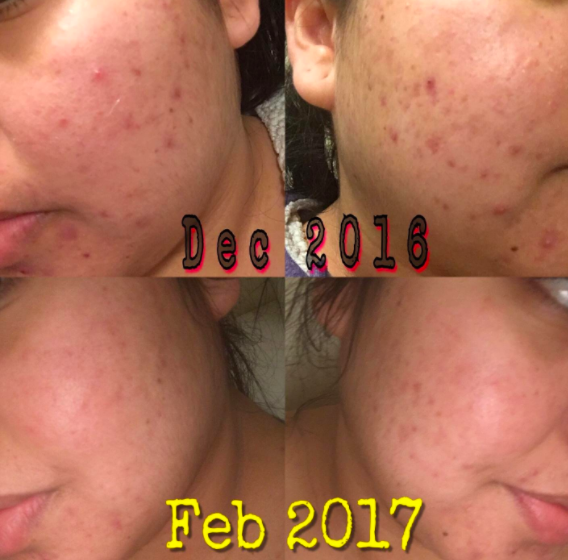 a reviewer's face with lots of pimples dated Dec. 2016, then their face with the pimples largely faded labeled feb. 2017