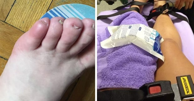 31 Painful And Ridiculous Ways People Have Broken Their Body Parts