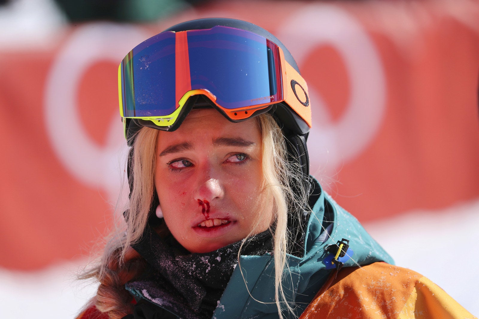 Emily Arthur of Australia is left bleeding after falling in her final run during the women's halfpipe final at the Pyeongchang 2018 Winter Olympics on Feb. 13.