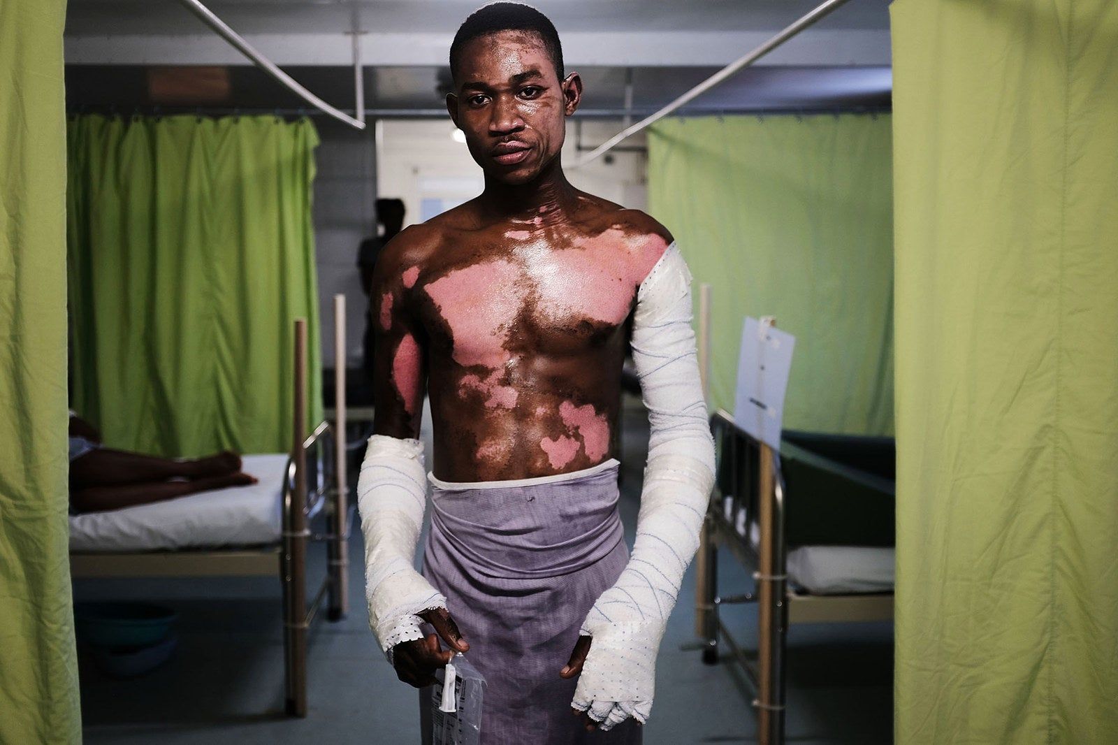 Shnider Avril, who was severely burned by an explosion from a propane tank is treated in the Doctors Without Borders (MSF) Drouillard hospital for burn patients on Feb. 12, in Port-au-Prince, Haiti. The hospital has the first dedicated burn unit in Haiti.
