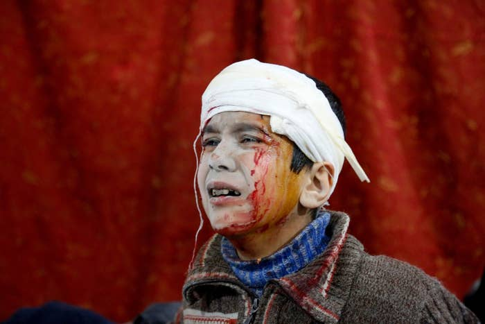 A child waits to receive treatment at a field hospital in Kafr Batna, Eastern Ghouta.