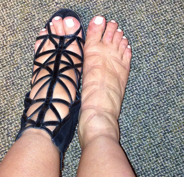 Having swollen AF pregnancy feet (these just so happen to be Kim Kardashian West's)...