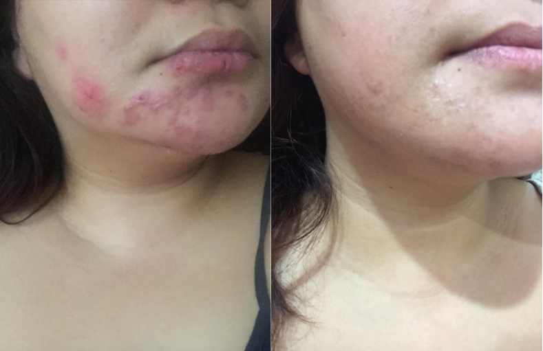 On the right, a reviewer has bumpy, cystic acne all over their chin and jawline that's purply red. On the right, the reviewer has clearer skin with a more even complexion and no redness