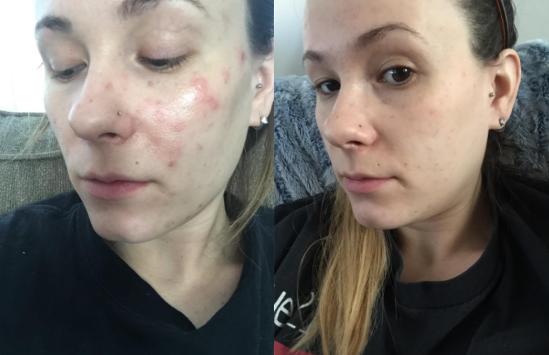 On the left, a reviewer has cystic acne along their oily cheek and nose. On the right, the reviewer has clearer, less oily skin and hardly noticeable acne