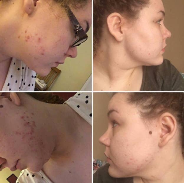 "This product has over 8,900 five-star reviews! For more information, check out Terri Pous' in-depth review!Promising review: ""I absolutely love this product. These pictures are show a three month difference and it's improved even more since I took them. This mask is amazing! My cystic acne was painful and made me so self-conscious. It changed my life."" —NakGet it from Amazon for $8.70."