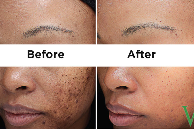 Dr. Henry says the VI Peel is safe for all skin tones, and the unique blend of trichloroacetic acid, retinol, salicylic acid, phenol, and vitamin C help to restore evenness.