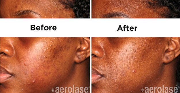 Aerolase LightPod Neo Laser emits energy at a rapid speed to protect the skin from excessive heat, which can burn the skin or exacerbate hyperpigmentation.