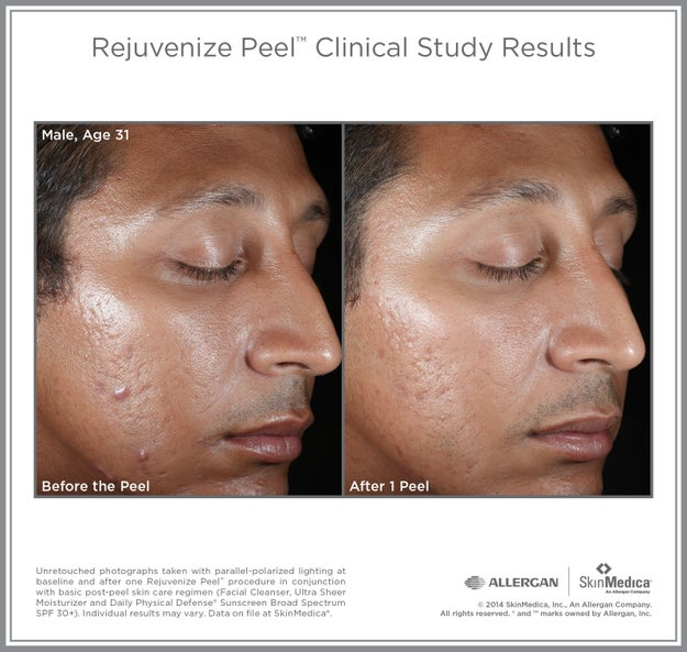 Vitalize Peel by Skin Medica has to be administered by a dermatologist or esthetician. It speeds up the lightening process through deeper exfoliation, and contains salicylic acid, lactic acid, and retinol.