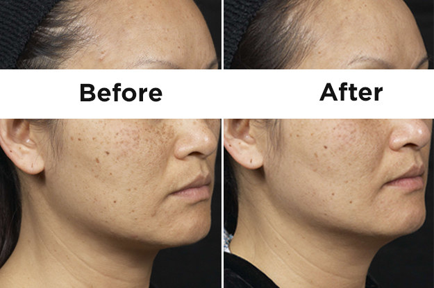 Clear and Brilliant Laser creates small channels, allowing lightening agents to penetrate more deeply.