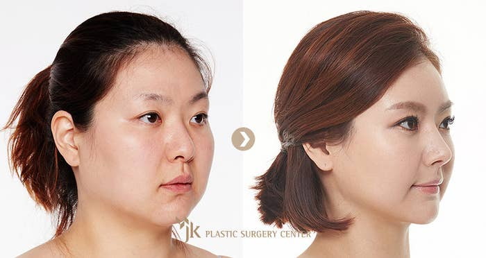 Here's Why 1 In 3 South Korean Women Say They've Had Plastic Surgery
