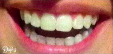 14 Teeth Whiteners That Actually Really, Really Work