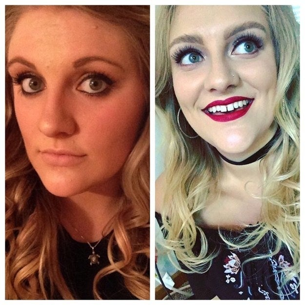 Three years difference, thank God I put down the tweezers. – Emalynw