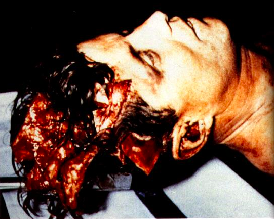 John F. Kennedy autopsy (WARNING: VERY graphic picture.)