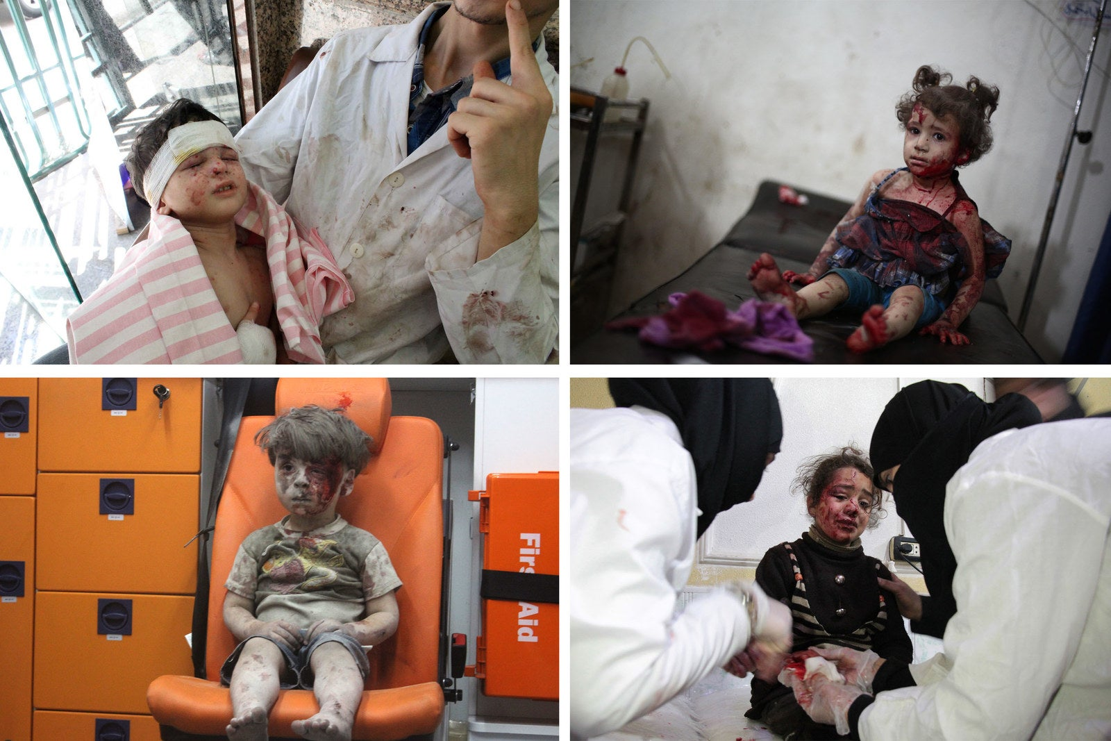 Top left, a wounded Syrian child receives medical treatment at a hospital in Aleppo, 2012. Top right, an injured girl is treated at a makeshift hospital in Douma, 2014. Bottom left, Omran Daqneesh sits alone in the back of the ambulance after he got injured during air strikes, Aleppo, 2016. Bottom right, a Syrian girl receives treatment at a make-shift hospital in Douma, 2018.