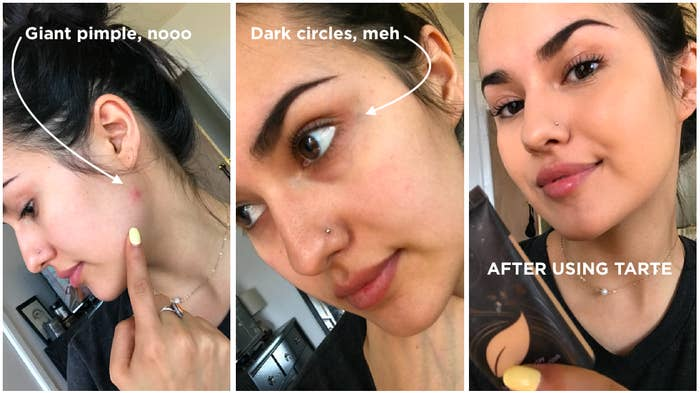 Kayla showing a pimple and dark circles and then them covered up with foundatio