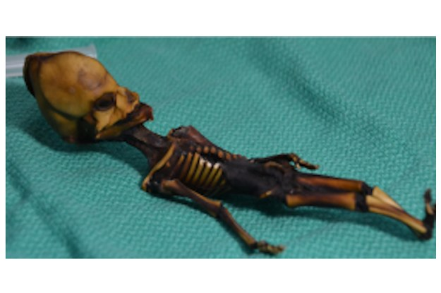 """Mystery """"Alien"""" Skeleton Turns Out To Be A Human With Genetic Mutations, According To A New Study"""