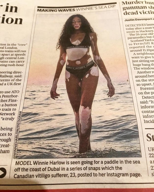 "After seeing London newspaper The Evening Standard refer to her as a ""Canadian vitiligo sufferer,"" Harlow took to Instagram to make it clear she has no time for publications that victimize her writing, ""I'm not a 'Vitiligo Sufferer'. I'm not a 'Vitiligo model'. I am Winnie. I am a model. And i happen to have Vitiligo."""