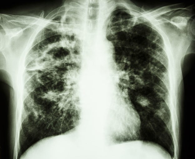 Between 2000 and 2015, eight dentists and one dental technician developed a lung condition called idiopathic pulmonary fibrosis, and seven of the patients died.