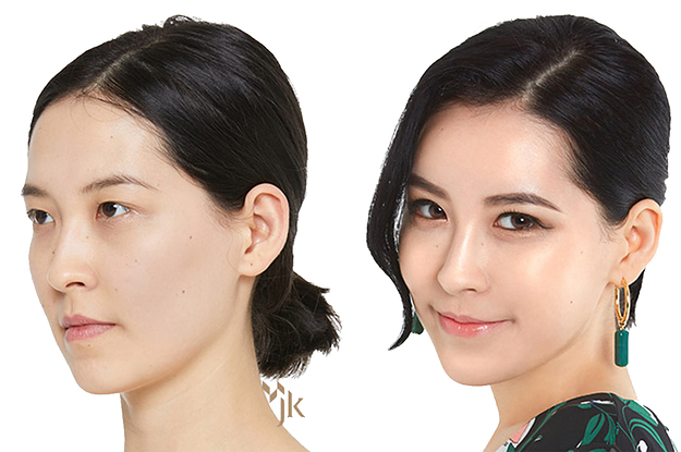 Heres Why 1 In 3 South Korean Women Say Theyve Had Plastic Surgery