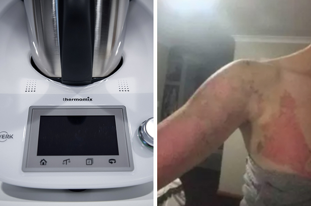 Thermomix Was Fined $4.6 Million After People Were Badly Burned Using Its $2,000 Kitchen Appliance