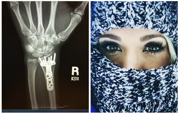 Earlier this year Carrie Underwood told fans she received over 40 facial stitches following a bad fall last November. She also broke her wrist in the accident.