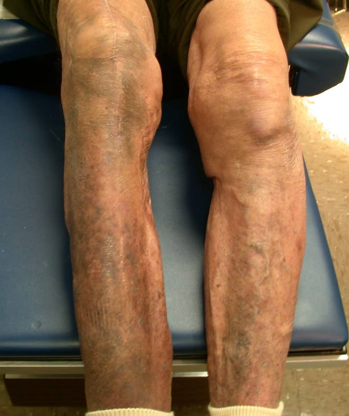 An example of a patient (not the patient in the case report) with minocycline-related pigmentation.
