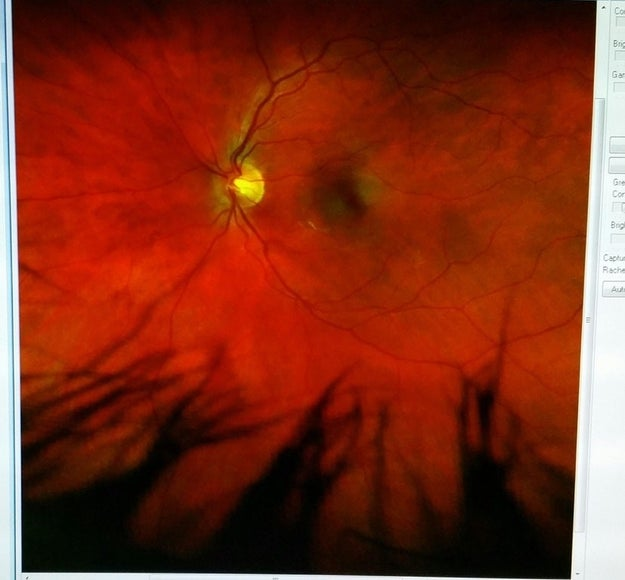 This photo of the inside of someone's eye that looks like the sky in a terrifying parallel universe.