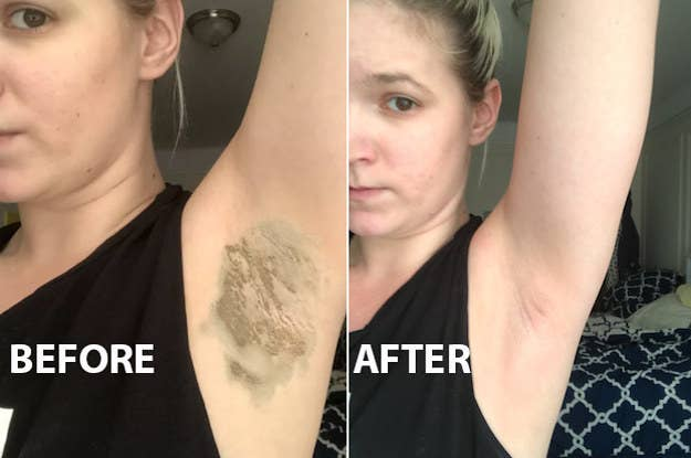 Laser Hair Removal Changed My Armpits And Got Rid Of My B O