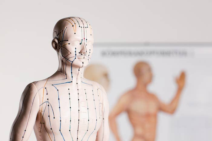 Here's Absolutely Everything You Need To Know About Acupuncture