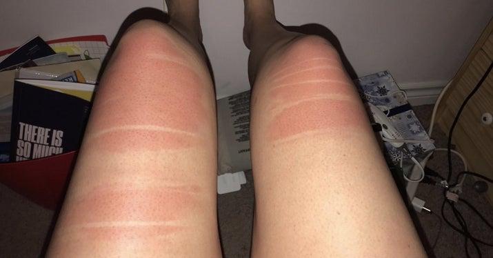 夏天穿「破褲」會發生什麼事?就...直接變刺青囉~(18張)