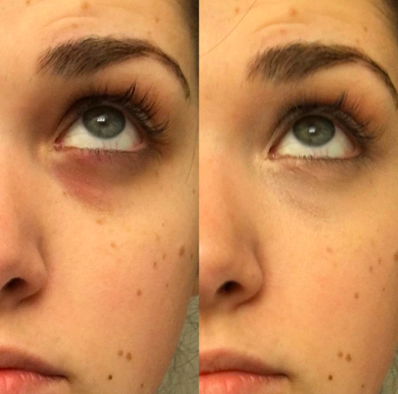 26 Products That May Help With The Bags Under Your Eyes