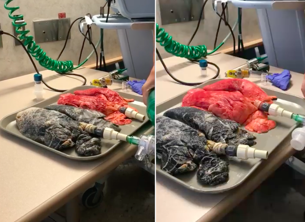 People Are Disturbed But Fascinated By This Video Showing A Smoker's Lungs