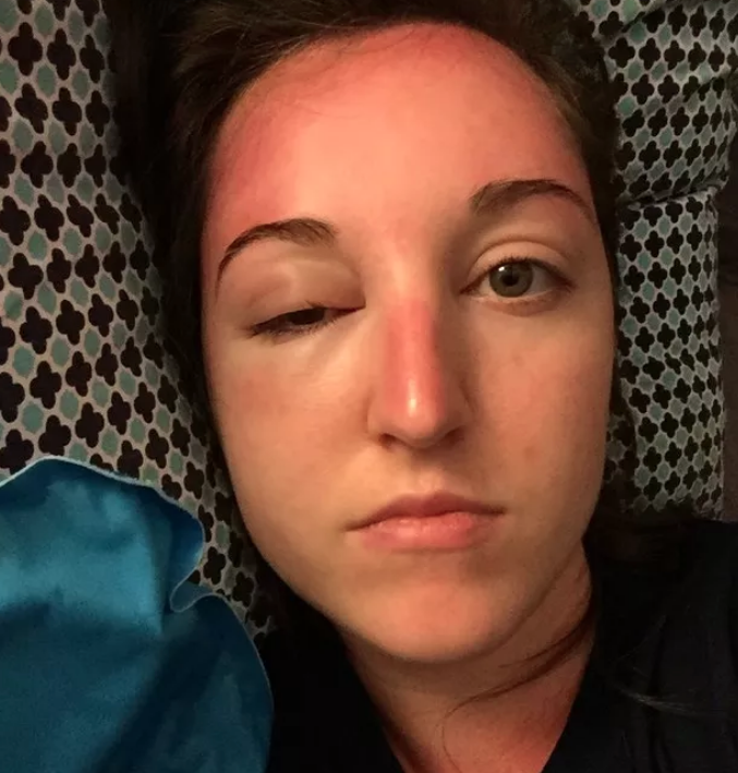 Show Us Your Most Ridiculous Sunburn