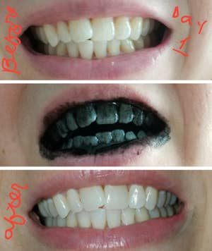 15 Amazing Teeth Whiteners People Actually Swear By