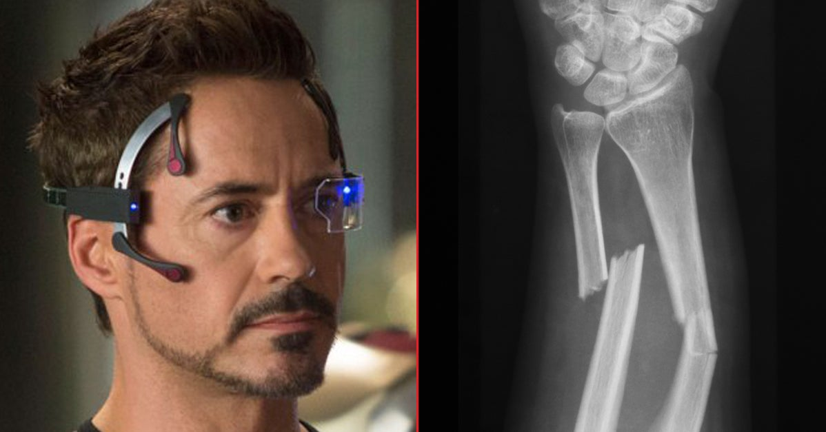 18 Actors Who Got Seriously Beat Up While They...